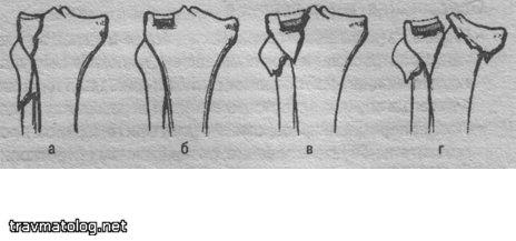 Переломы мыщелков большеберцовой кости