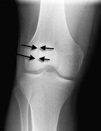 Перелом надколенника на рентгене