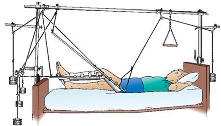Скелетное вытяжение при переломах: виды, методы, восстановление