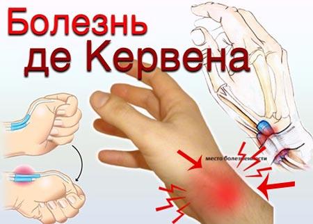 Болезнь де Кервена — причины, симптомы синдрома, диагностика, лечение и операция