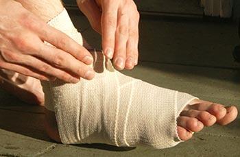 Болезнь (остеохондропатия) Келлера I и Келлера II: причины, стадии, симптомы, диагностика, лечение
