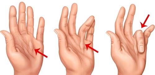 Контрактура Дюпюитрена — что это такое, причины, симптомы, лечение, операция, реабилитация и профилактика