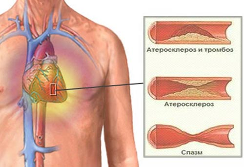 Стенокардия одышка лечение