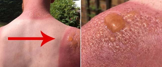 Лечение солнечного ожога пузырей