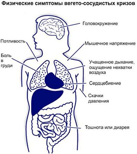 Причины вегето сосудистой дистонии у женщин