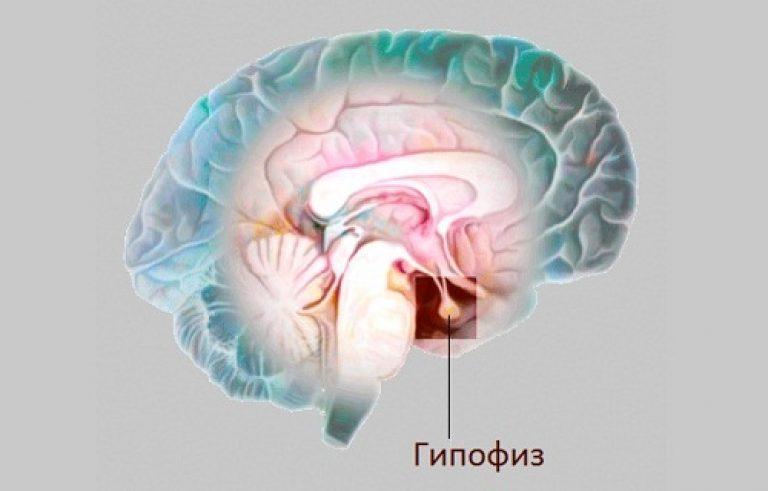гипофиз головного мозга фото неверная