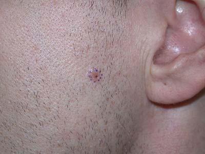 Мазь от базалиомы кожи лица