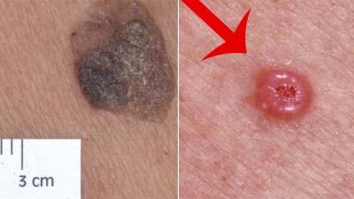 Базалиома кожи — что это такое, причины, фото на разных стадиях, как лечить базалиому