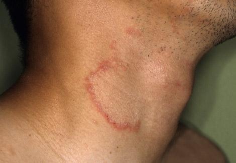 Дерматомикоз мазь для лечения