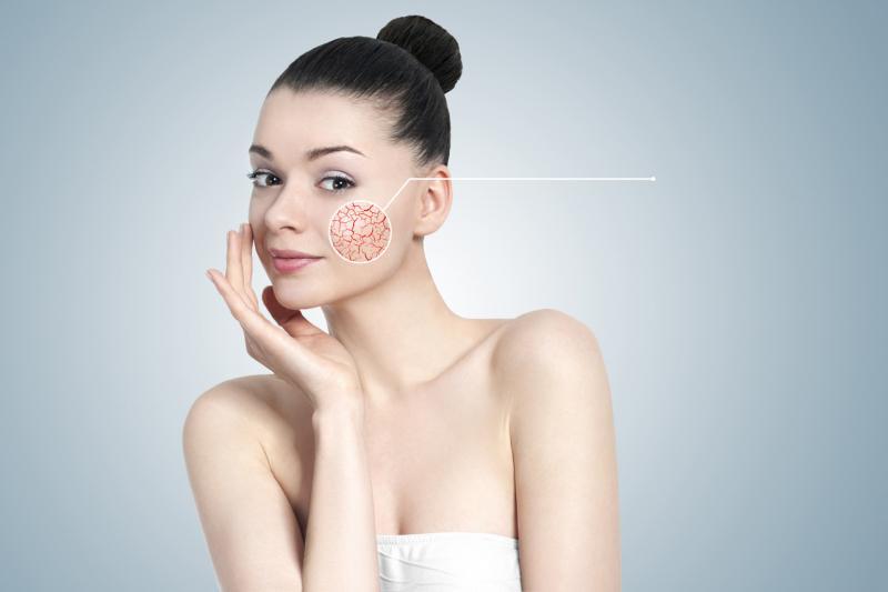 Купероз — что это такое, причины, симптомы, лечение купероза на лице