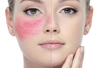 Розацеа на лице — что это такое, причины, фото, симптомы и лечение