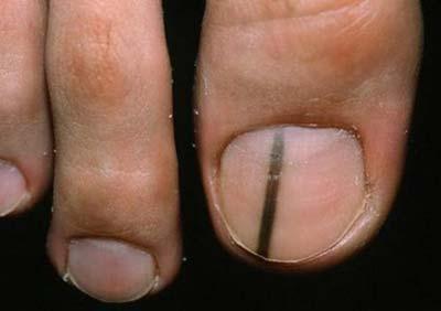 Меланома большого пальца стопы