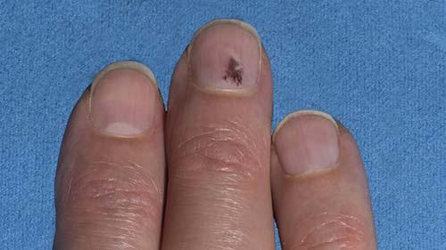 Меланома под ногтем на руке
