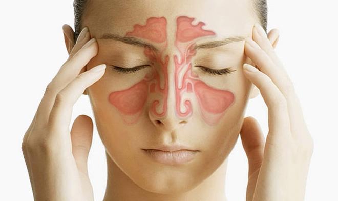 Пансинусит — что это за болезнь, причины, симптомы, лечение острой и хронической формы