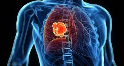 Саркоидоз легких — что это за болезнь, причины, симптомы, лечение при саркоидозе и прогноз для жизни