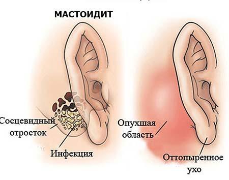 Болит в ушах и шишка за ухом