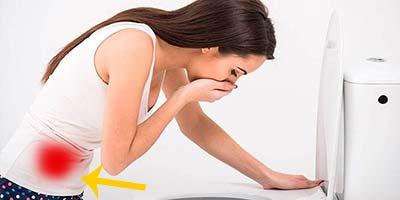 Рак кишечника у женщин — симптомы и первые признаки на ранних стадиях