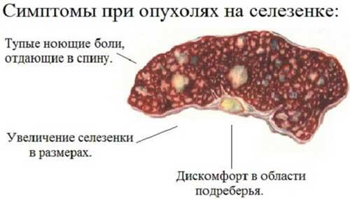 Лучевая диагностика опухоли селезенки