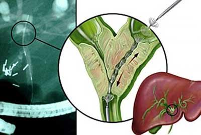 Бывает ли рак желчного пузыря