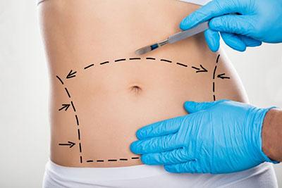Абдоминопластика: операция пластики живота