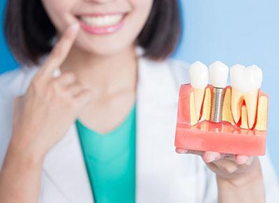 Чем хороша имплантация зубов?