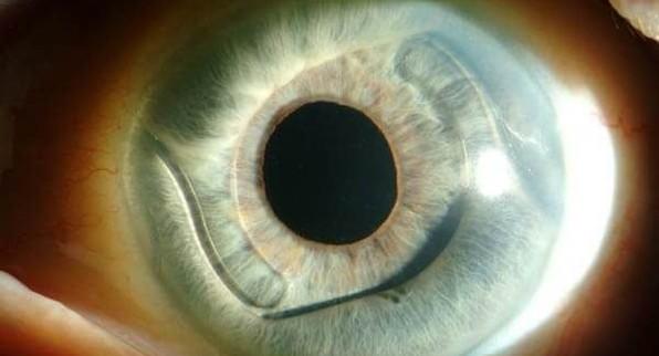 Афакия глаза: что это за заболевание, виды и стадии, симптомы и лечение
