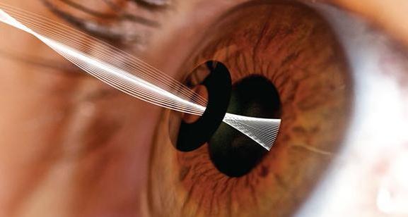Артифакия глаза: что это такое, причины и диагностика