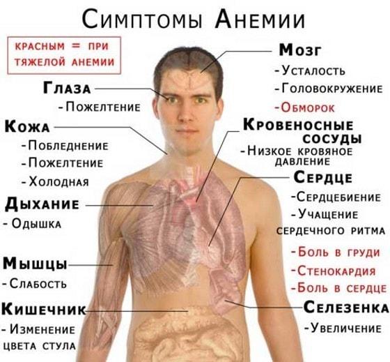 симптомы анемии у взрослых и детей