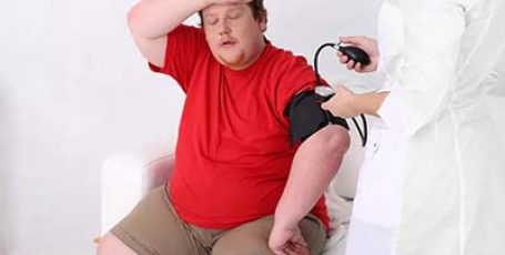 Как проявляется абдоминальное ожирение у мужчин?