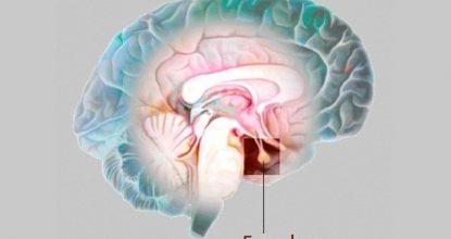 Аденома гипофиза – что это за болезнь головного мозга, симптомы, лечение у женщин и мужчин