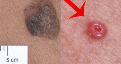 Базалиома кожи – что это такое, причины, фото на разных стадиях, как лечить базалиому