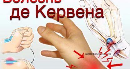 Болезнь де Кервена – причины, симптомы синдрома, диагностика, лечение и операция