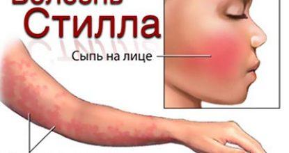 Болезнь Стилла: причины, симптомы у взрослых и детей, диагностика, лечение, профилактика, рекомендации
