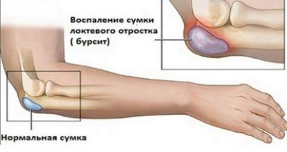 Бурсит локтевого сустава: причины, симптомы и признаки, фото, лечение, профилактика в домашних условиях