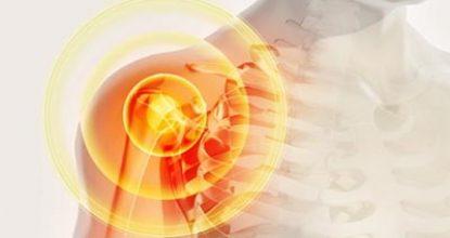 Бурсит плечевого сустава: что это такое, причины развития, симптомы, варианты лечения, профилактика