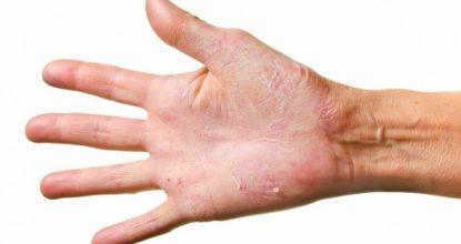 Дерматомикоз – что это, причины, классификация, симптомы и лечение у человека