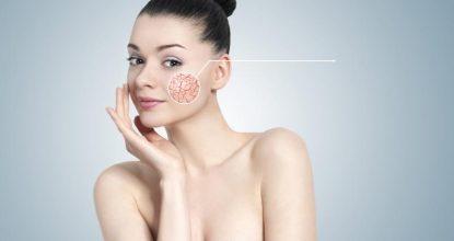 Купероз – что это такое, причины, симптомы, лечение купероза на лице
