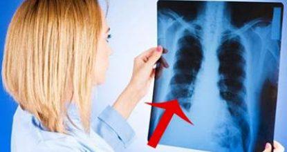 Фиброз легких – что это, причины, симптомы, лечение, опасно или нет, продолжительность жизни