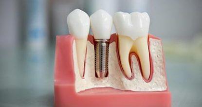 Имплантация зубов: показания и противопоказания