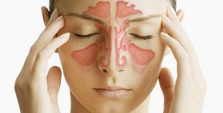 Пансинусит – что это за болезнь, причины, симптомы, лечение острой и хронической формы