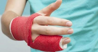 Переломы костей кисти и пальцев