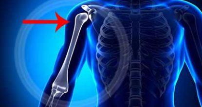 Переломы плечевой кости
