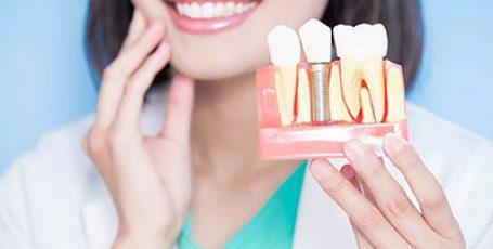Как подготовиться к имплантации зубов?