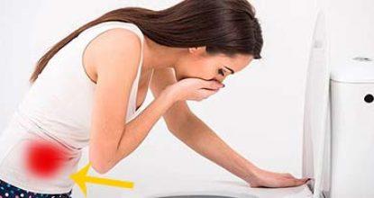 Рак кишечника у женщин – симптомы и первые признаки на ранних стадиях