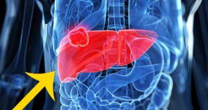 Рак печени 4 стадии: прогноз, сколько живут с опухолью при метастазах, лечение