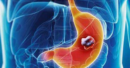Рак желудка 4 степени: симптомы, прогноз выживаемости, сколько живут на последней стадии