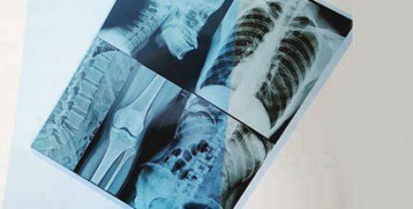 Рентгеновская пленка