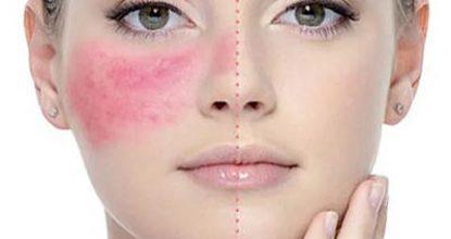 Розацеа на лице – что это такое, причины, фото, симптомы и лечение