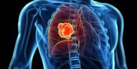 Саркоидоз легких – что это за болезнь, причины, симптомы, лечение при саркоидозе и прогноз для жизни