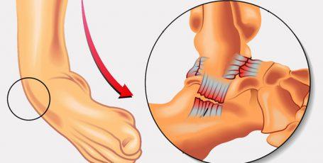 Травматические вывихи: признаки, симптомы, лечение и реабилитация